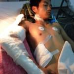 Thanh niên bị chém rơi cánh tay vật vã la hét ở bệnh viện